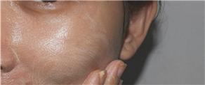 Guaranteed solution for open pores
